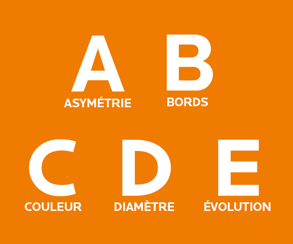 2-Melanome_Depistage_ABCDE_578x480px